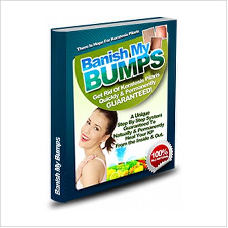 Banish my bumps