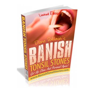 Banish tonsil stones VSL